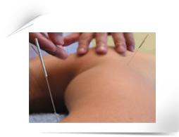 chinese acupuncture at chisense clinic, aldgate, city, whitechapel, london